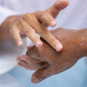 Rubbing cream on a man's hand